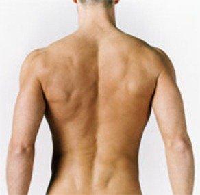S-образный сколиоз левосторонний грудной правосторонний поясничный